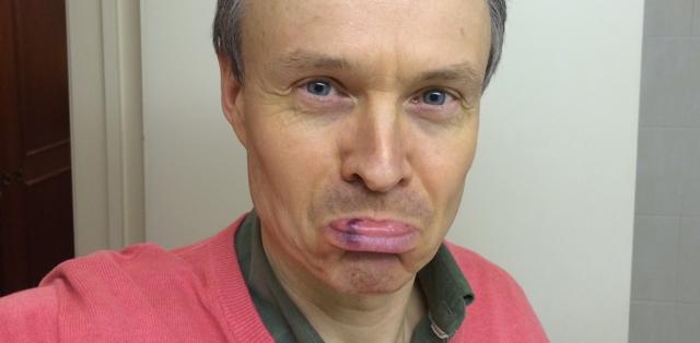Bruised lip